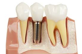 https://www.123.clinic/en/clinic-search/all-on-4-dental-implant-solution/hungary