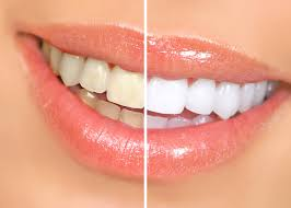 http://easyteethwhitening.net/laser-teeth-whitening-procedure/