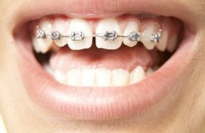 https://www.centralastoria.nyc/business-directory/dr-ora-r-canter-orthodontics